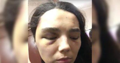 муж избил жену что ему грозит